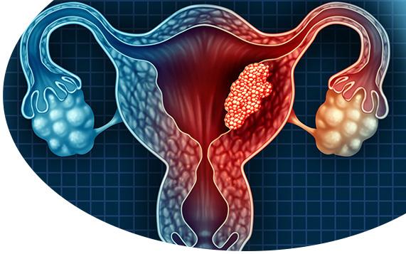 Rahim Kanseri (Endometriyal Kanser – Uterus Kanseri)