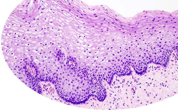 Rahim Ağzı Kanseri Öncü Lezyonlar (CIN)